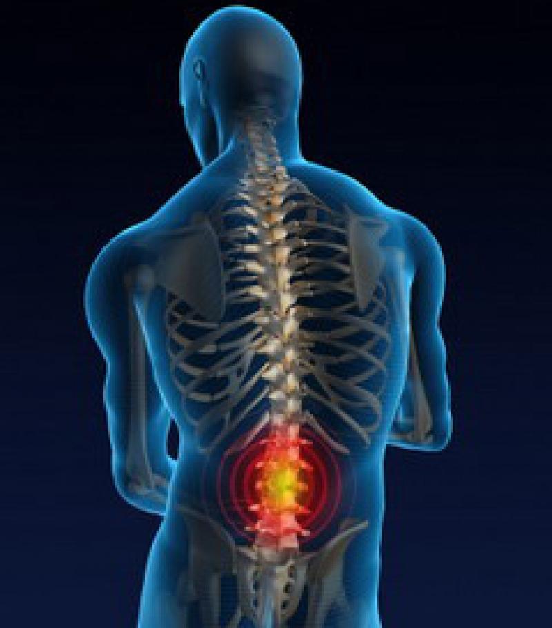 Har du prolaps i ryggen?