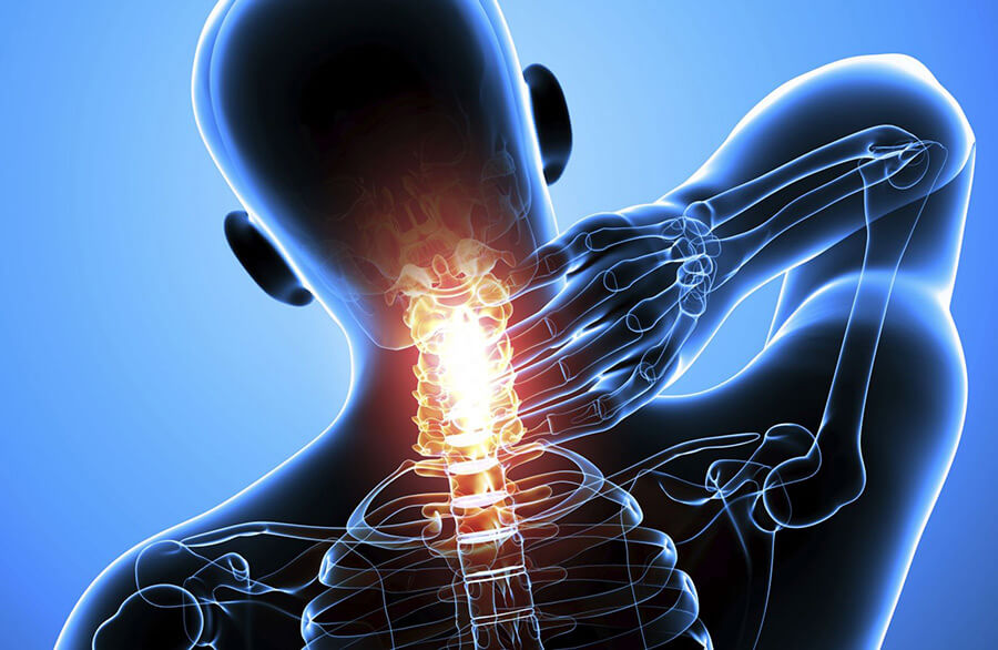 Prolaps i nakken - Nakkeprolaps kan noen ganger være svært alvorlig